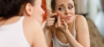 Acne - niet alleen een puberkwaal